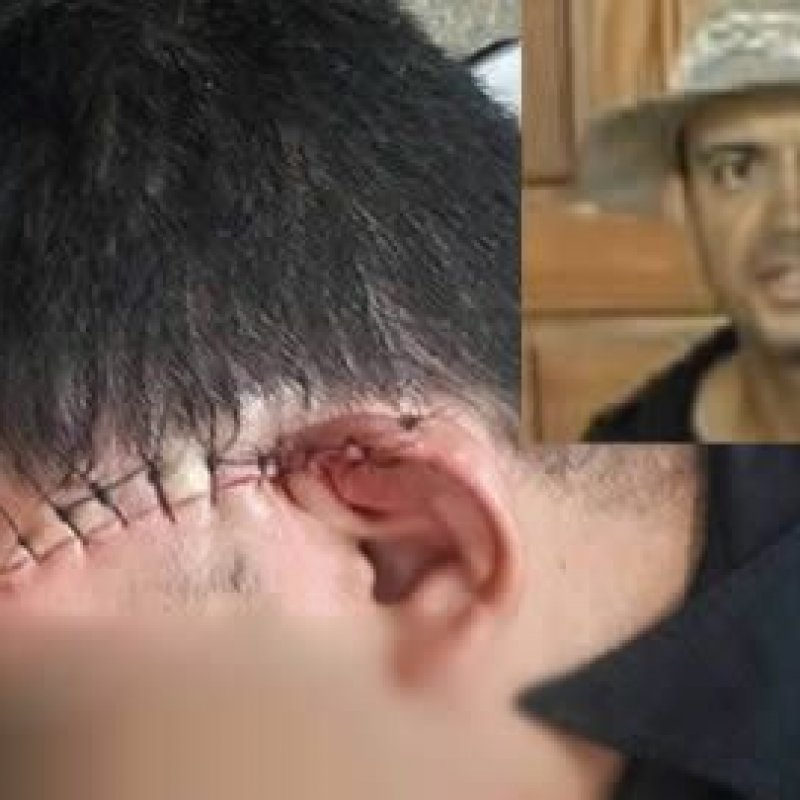 Jaru: homem fere policial a golpes de facão e acaba morto a tiros