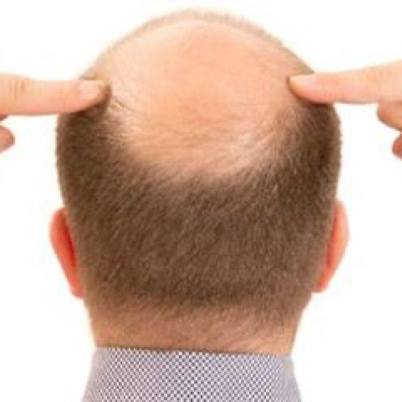 Estudo acha 287 genes que causam calvície