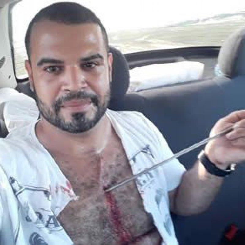 Pescador reage assalto e sofre tiro de arpão no peito em Fortaleza