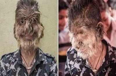 Menino indiano tem doença rara que deixa o rosto coberto de cabelo