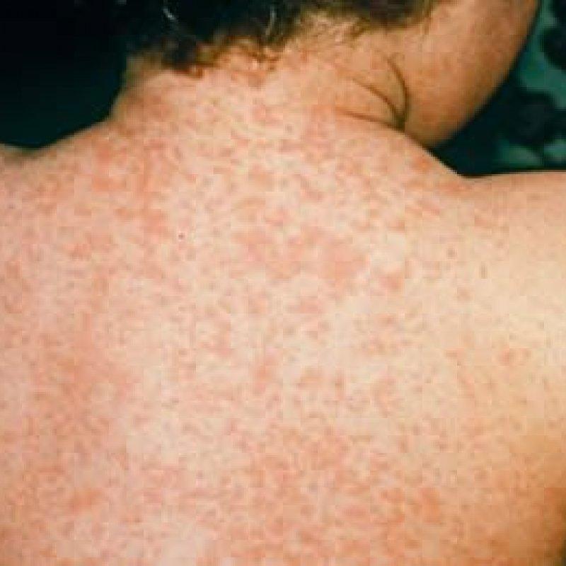 Primeiro caso de sarampo é registrado em Rondônia após cerca de 20 anos