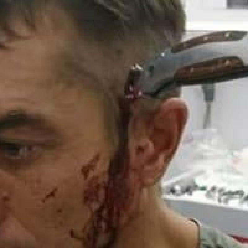 Ciclista sobrevive a ataque e fica com faca cravada na cabeça