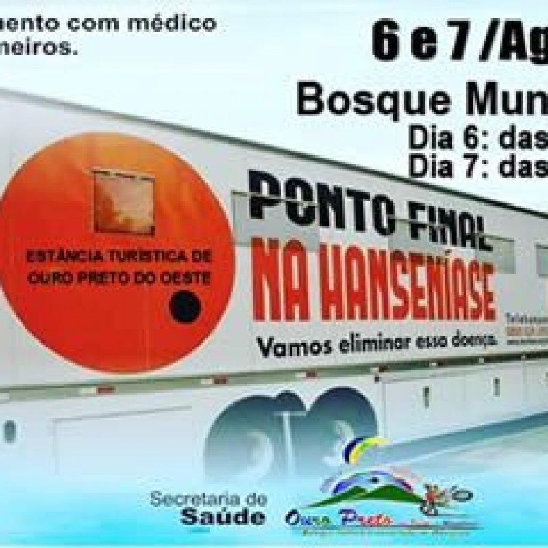 Ouro Preto: município recebe a carreta do projeto de prevenção à hanseníase